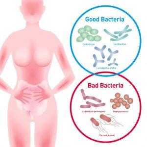 flora intestinala - sistemul digestiv - balonarea - life balance - emese magdas