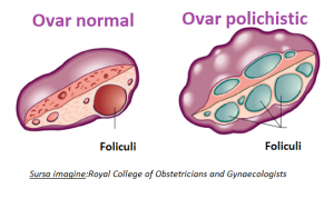 ovarul polichistic 2 - life balance - emese magdas